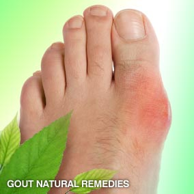 Gout natural remedies and cures